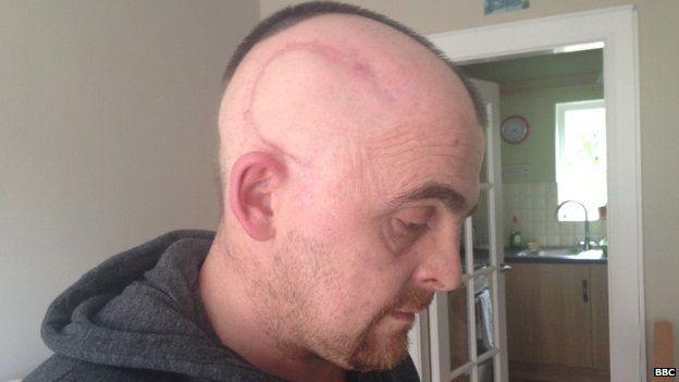 Kieran McCrory Brain Tumor scar